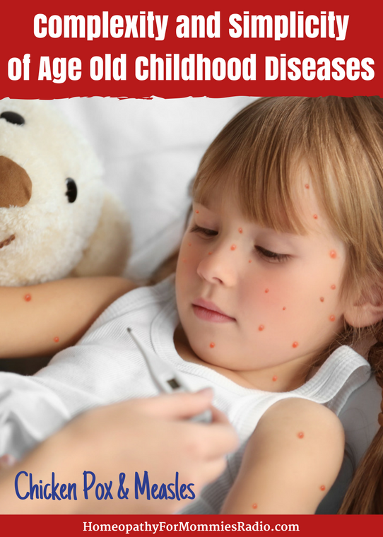Chicken Pox and Measles and Other Childhood Diseases