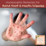 Homeopathy for Hand Foot and Mouth Disease