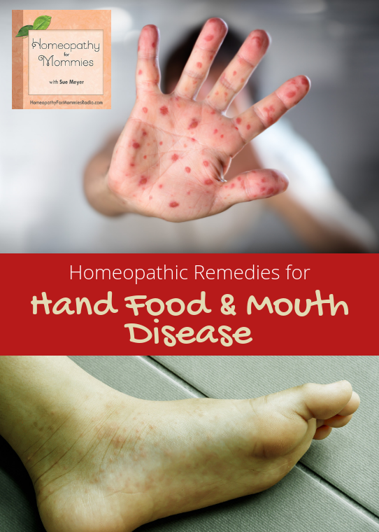 Homeopathic Remedies for Hand Foot and Mouth Disease from Homeopathy for Mommies Podcast - Listen Now!